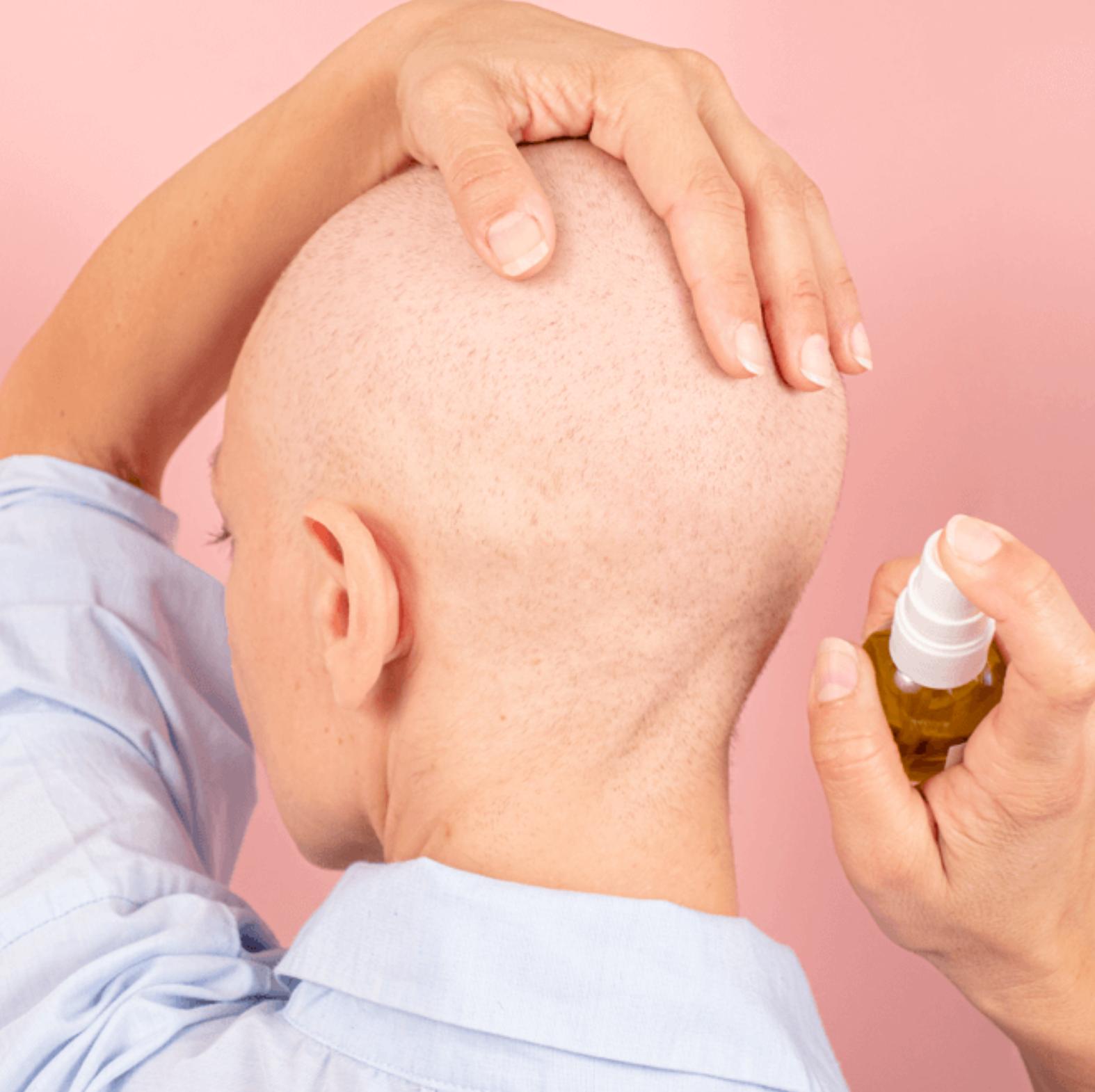 alopecie-cancer-femme-soins